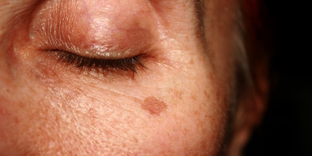 Aging Spots On Face: How Do I Get Rid of them?